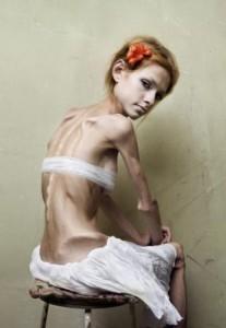 Anoreksikė visame savo klaikume
