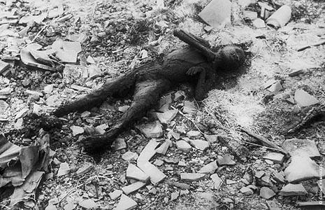 Sudegusio vaiko kūnas