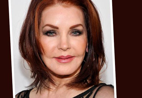 Priscilla Presley, botoksas