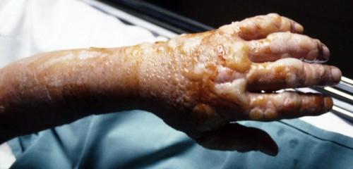 Ipritas turi vieną kariniu atžvilgiu labai gerą savybę: kai jis pažeidžia odą, žmogus ničnieko nepajunta. Netgi esant tragiškai sunkiems pažeidimams, pirmi simptomai atsiranda tik po 2-4 valandų. Bet netgi labai nedidelių iprito kiekių pakanka tam, kad po paros viskas pūslėmis nueitų. Tos pūslės paskui subliūkšta, išbėga, prasideda pūliavimas ir kol visa tai užgyja, praeina maždaug mėnuo laiko.