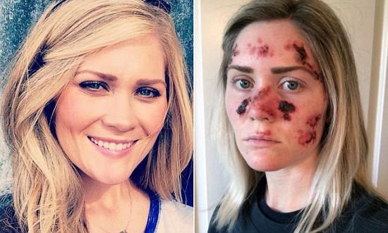 Tawny Willoughby, mergina iš Alabamos, susirgo odos vėžiu dėl to, kad vaikščiojo į soliariumus. Po susirgimo paskelbė savo nuotraukas Facebook - kad kiti irgi pamatytų, kuo tie soliariumai baigiasi. Išties vėžio prevencija yra daug geresnė priemonė, nei visokios kalbos apie tai, kad nuo vėžio padeda koks nors voveruškų nuoviras.